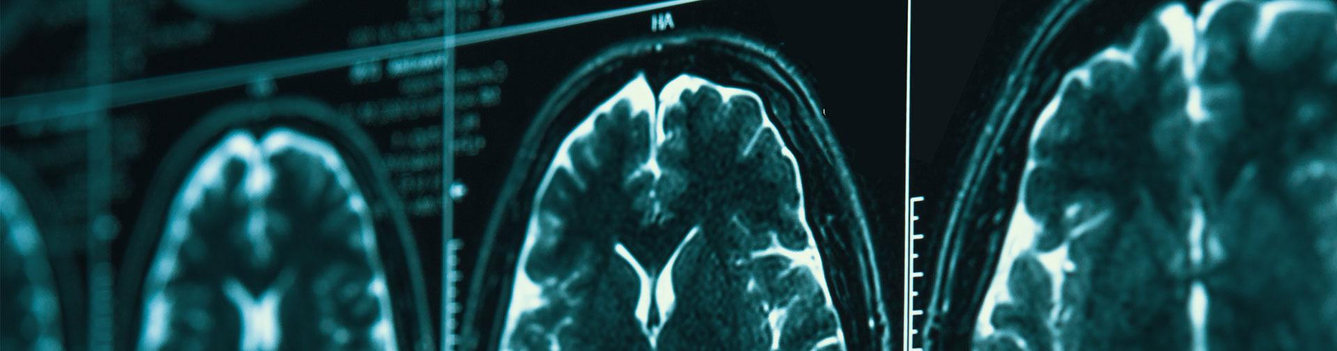 head scan